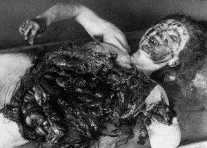 Female Victim of Unit 731